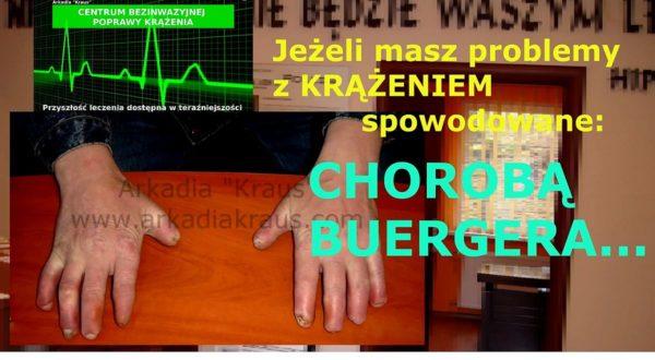 CHOROBA BUERGERA czyli zakrzepowo-zrostowe zapalenie naczyń
